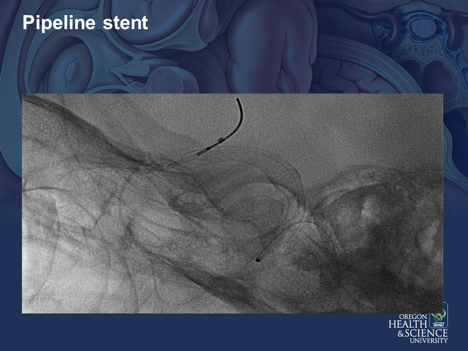 Pipeline stent