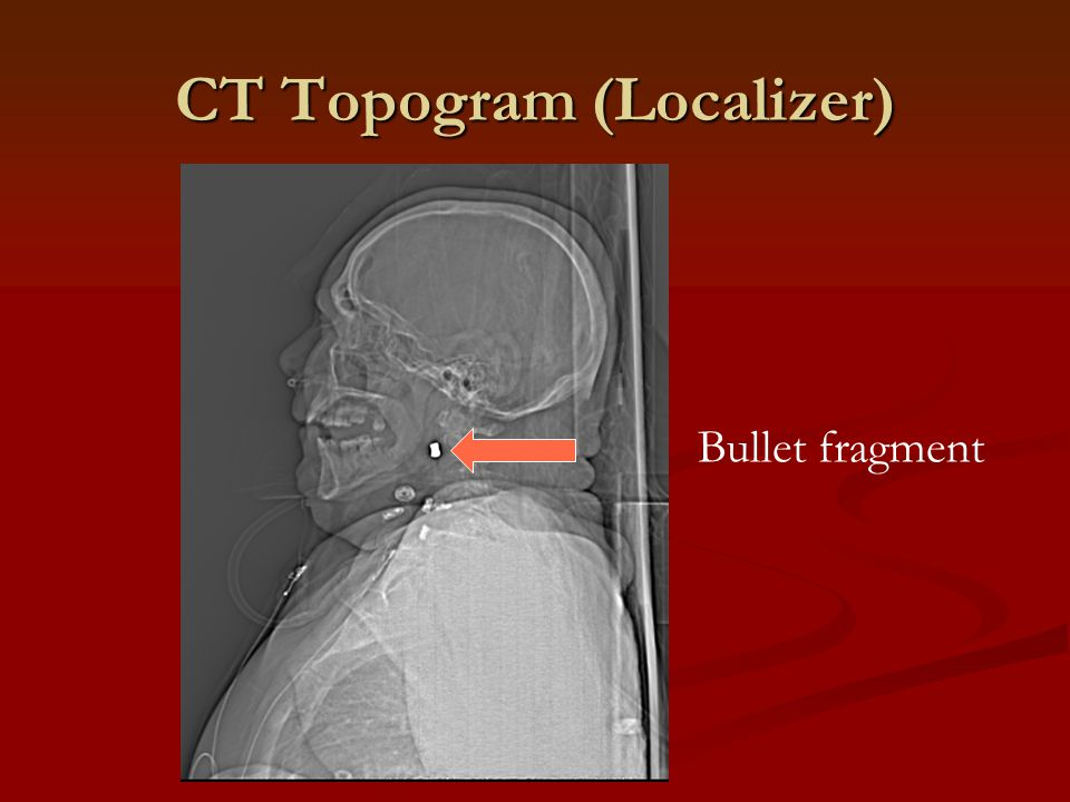 CT Topogram (Localizer)