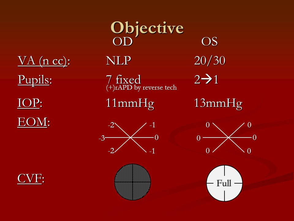Objective OD OS VA (n cc): NLP 20/30 Pupils: 7 fixed 21