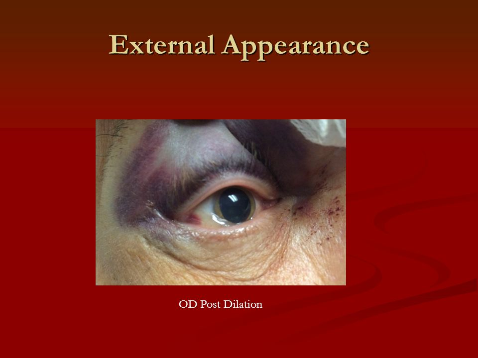 External Appearance OD Post Dilation
