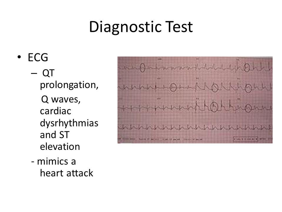 Diagnostic Test ECG QT prolongation,