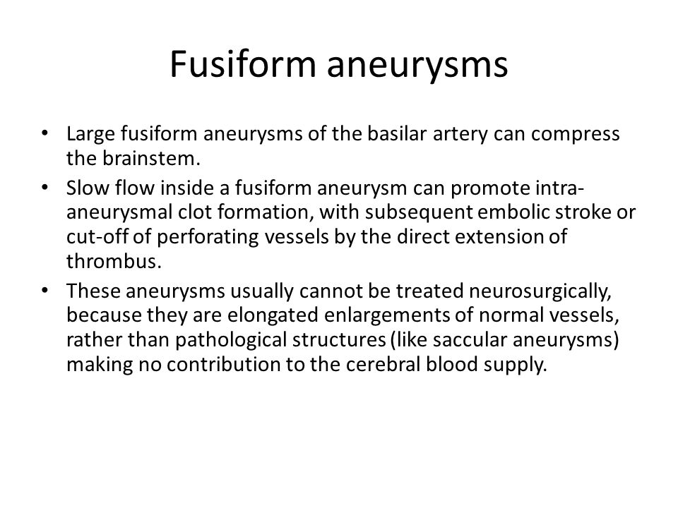 Fusiform aneurysms Large fusiform aneurysms of the basilar artery can compress the brainstem.