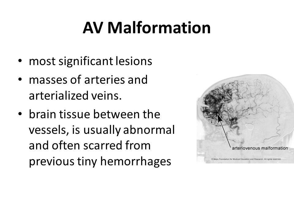AV Malformation most significant lesions