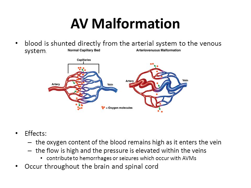 AV Malformation blood is shunted directly from the arterial system to the venous system. Effects: