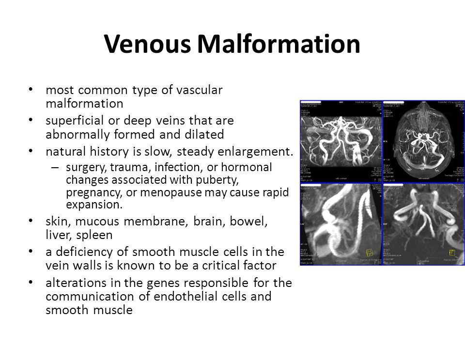 Venous Malformation most common type of vascular malformation