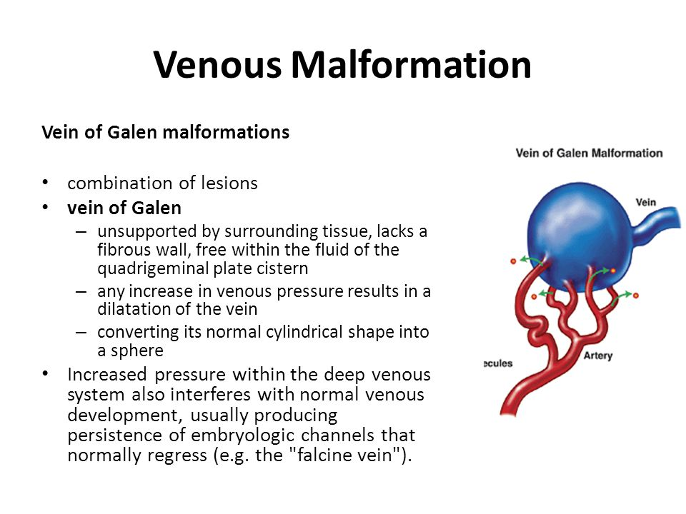 Venous Malformation Vein of Galen malformations combination of lesions