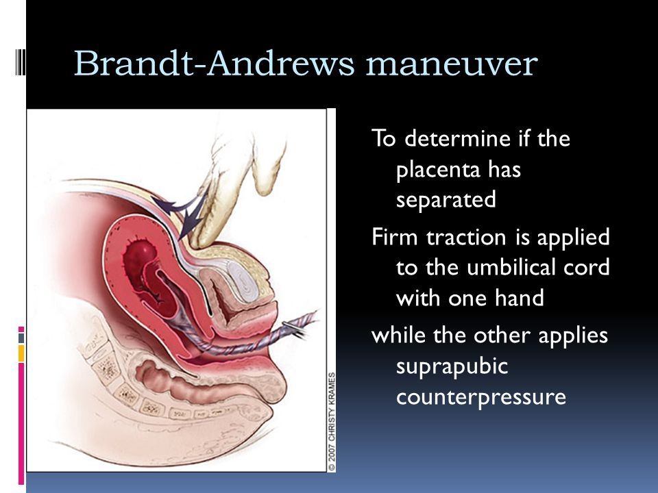 Brandt-Andrews maneuver