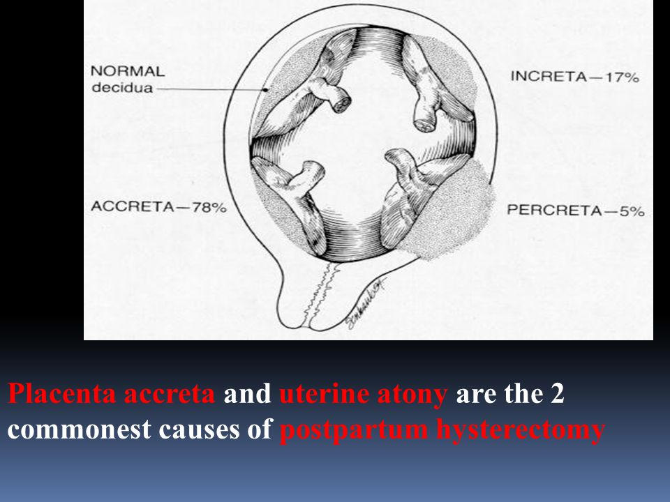 Placenta accreta and uterine atony are the 2 commonest causes of postpartum hysterectomy