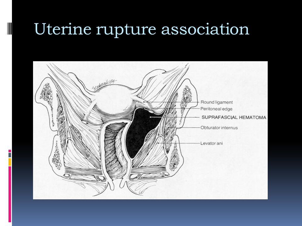 Uterine rupture association