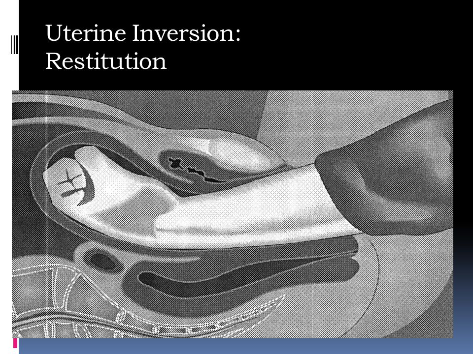 Uterine Inversion: Restitution