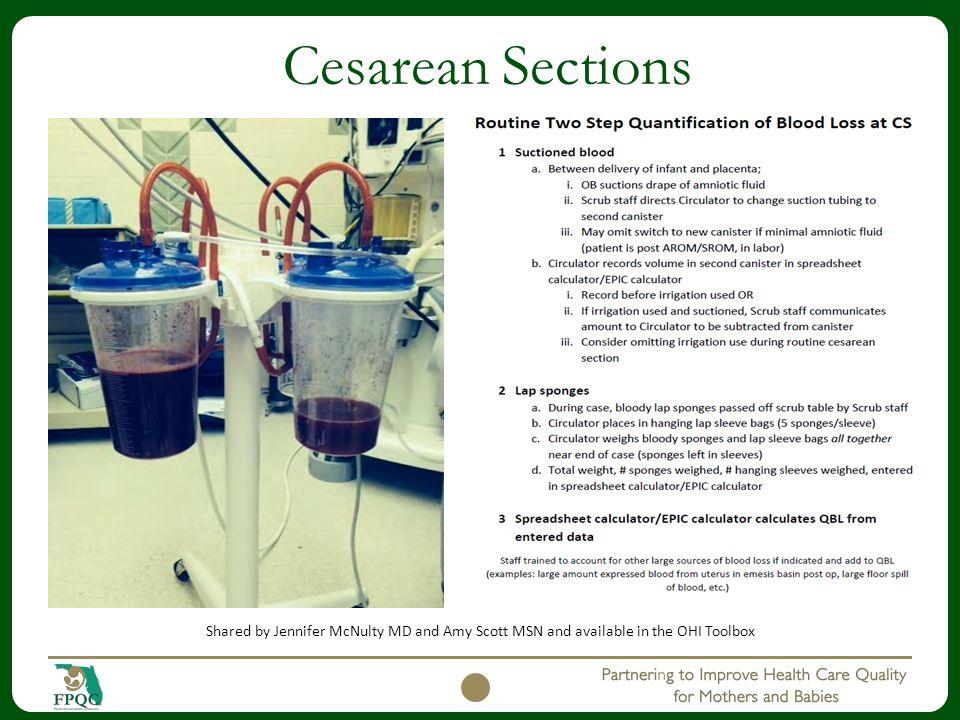 Cesarean Sections