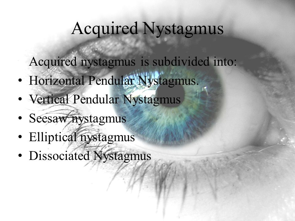 Acquired Nystagmus Acquired nystagmus is subdivided into: