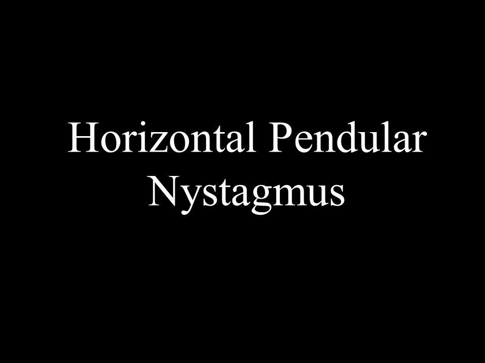 Horizontal Pendular Nystagmus