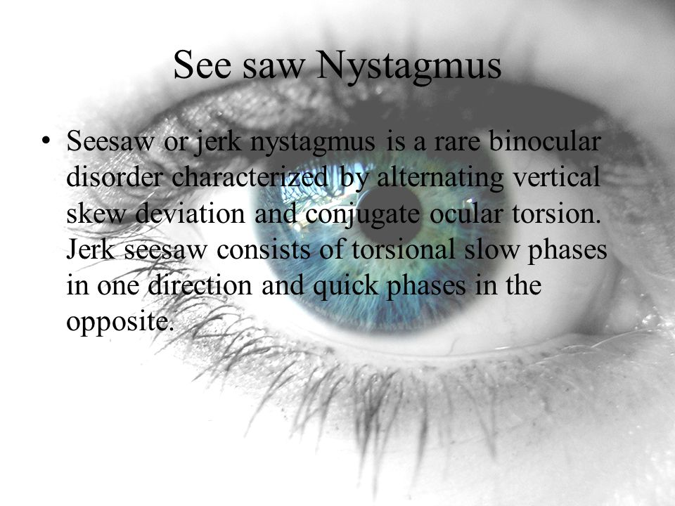 See saw Nystagmus