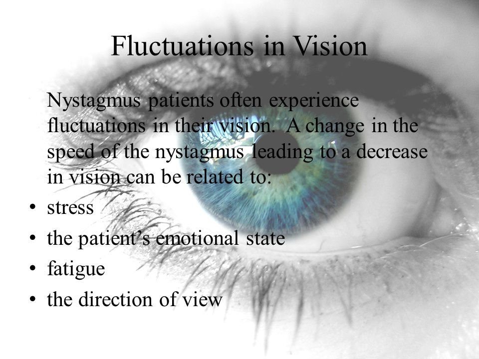 Fluctuations in Vision