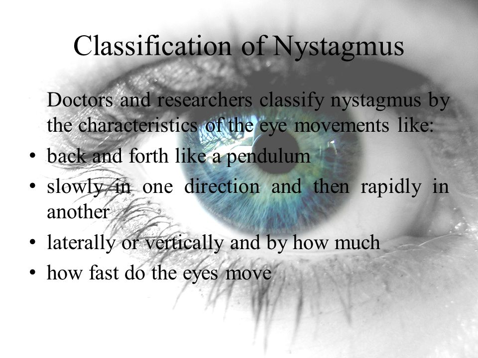 Classification of Nystagmus