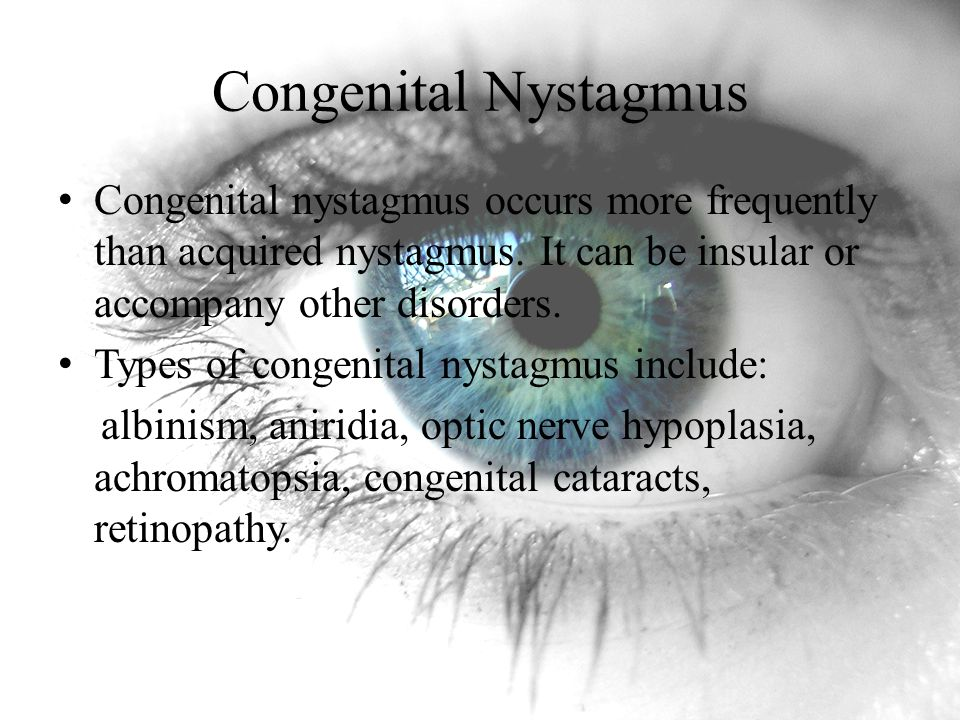 Congenital Nystagmus Congenital nystagmus occurs more frequently than acquired nystagmus. It can be insular or accompany other disorders.