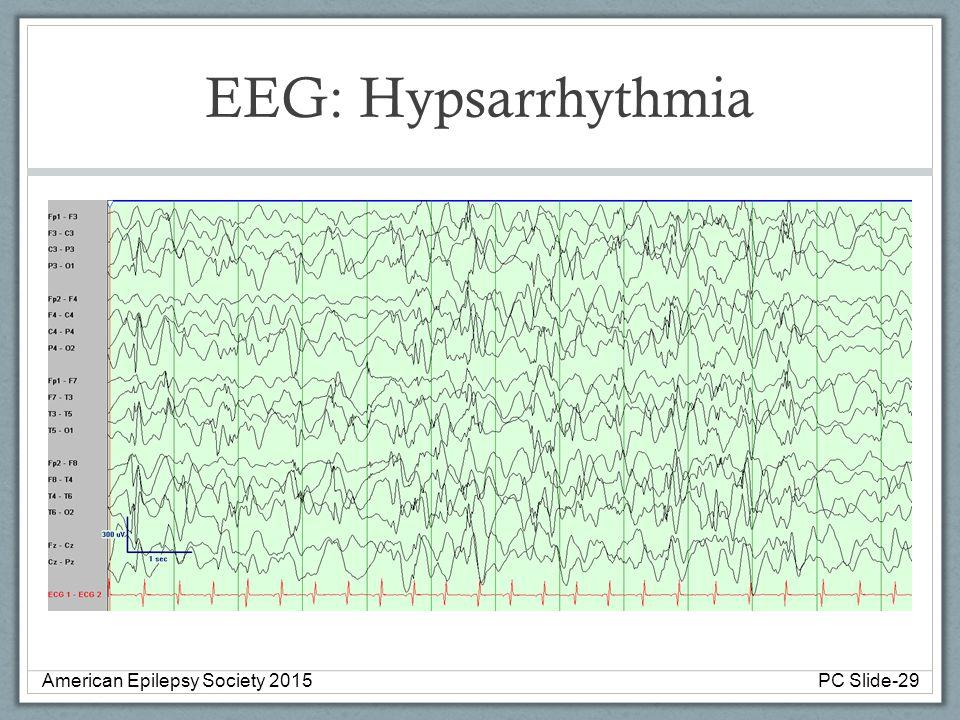 EEG: Hypsarrhythmia American Epilepsy Society 2015 PC Slide-29
