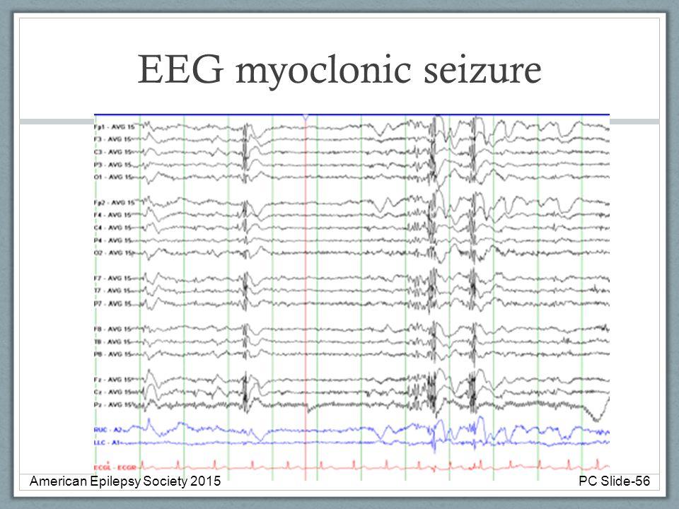 EEG myoclonic seizure American Epilepsy Society 2015 PC Slide-56