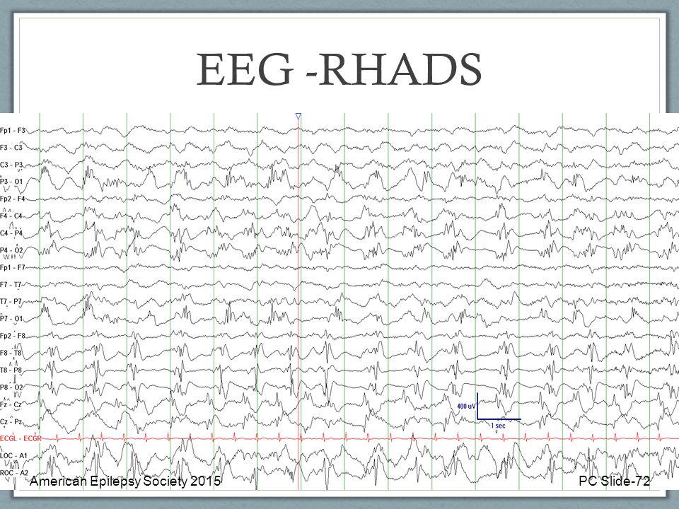 EEG -RHADS American Epilepsy Society 2015 PC Slide-72