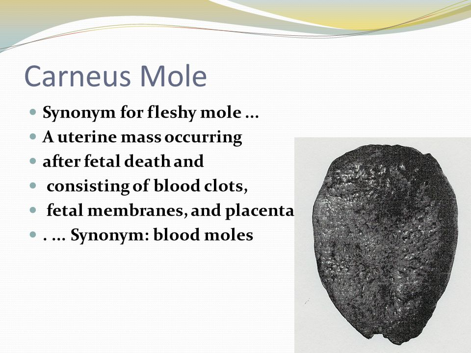 Carneus Mole Synonym for fleshy mole ... A uterine mass occurring