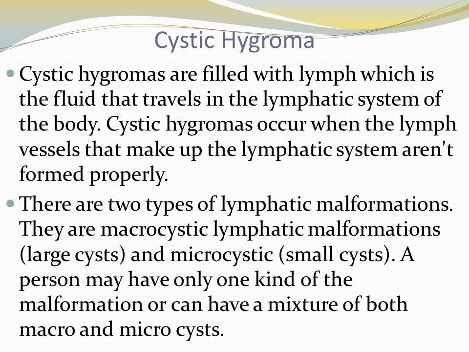 Cystic Hygroma