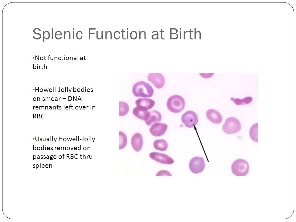 Splenic Function at Birth