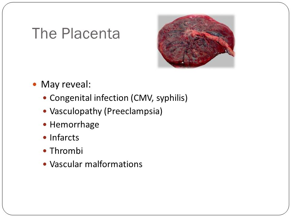 The Placenta May reveal: Congenital infection (CMV, syphilis)