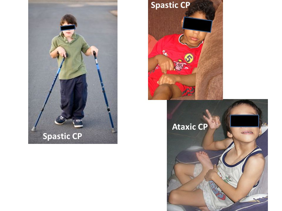 Spastic CP Ataxic CP Spastic CP