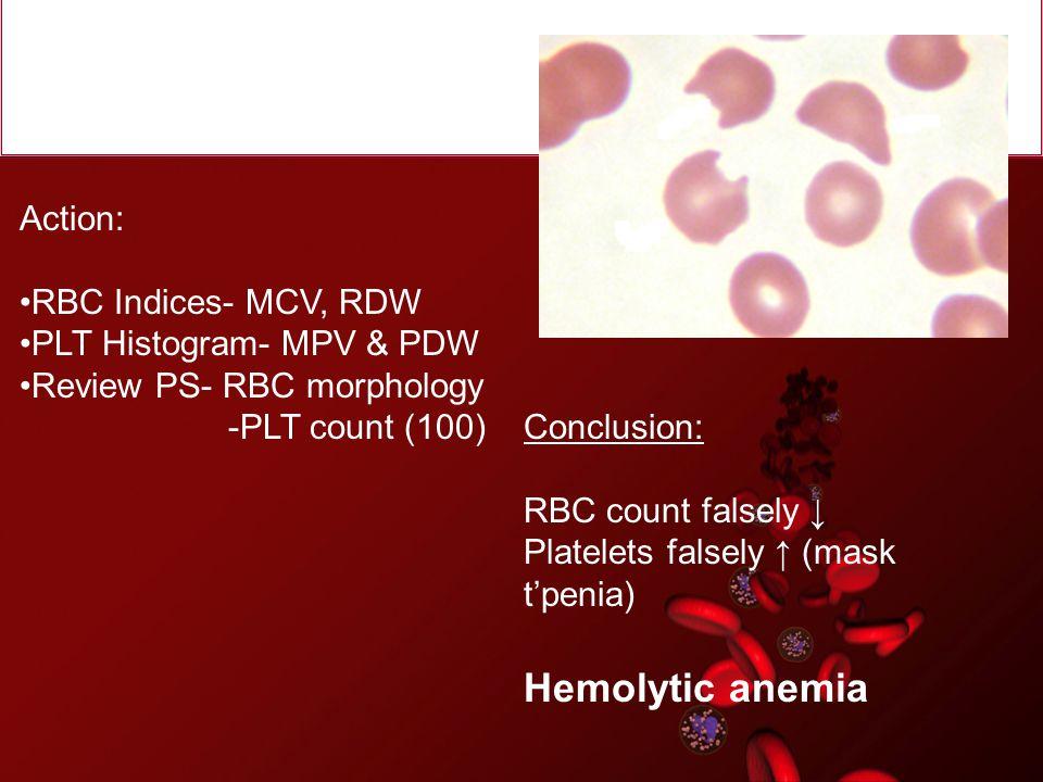Hemolytic anemia Action: RBC Indices- MCV, RDW