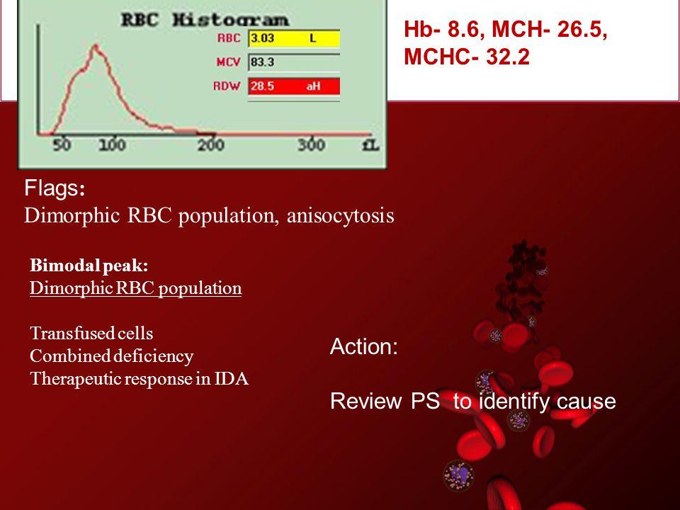 Dimorphic RBC population, anisocytosis
