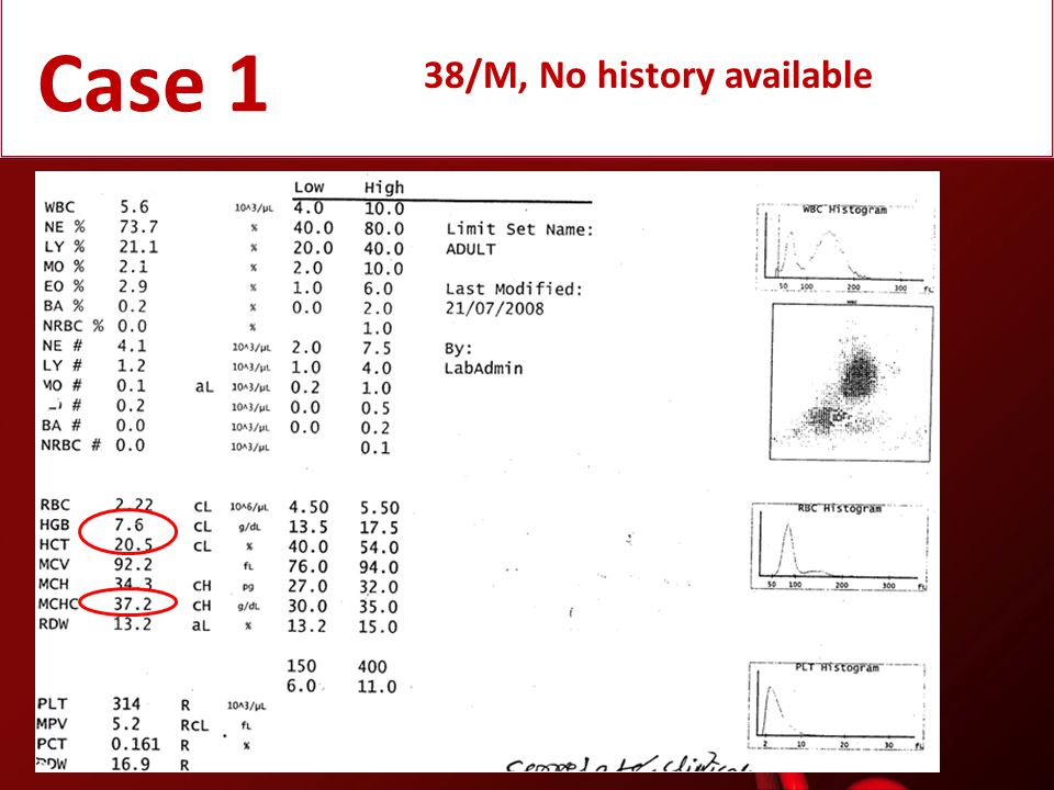 Case 1 38/M, No history available
