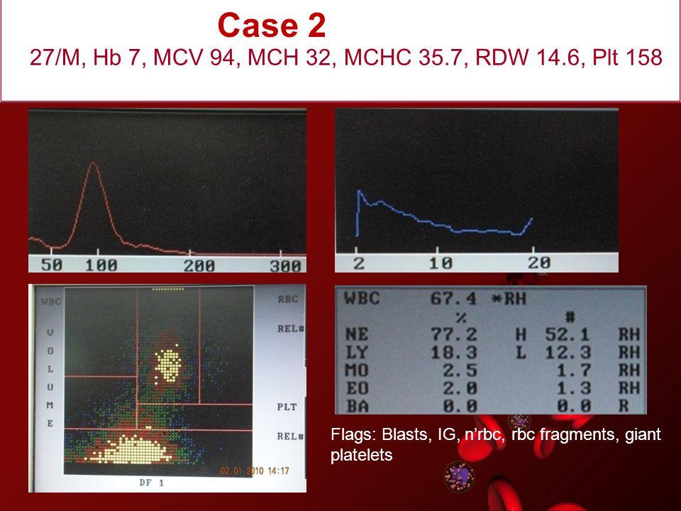 27/M, Hb 7, MCV 94, MCH 32, MCHC 35.7, RDW 14.6, Plt 158