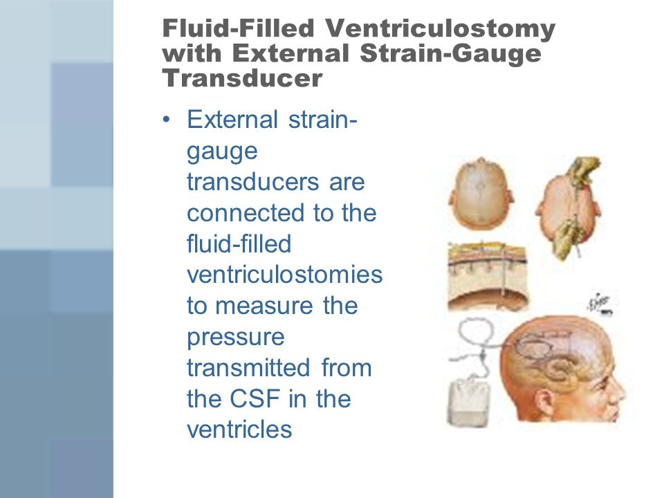 Fluid-Filled Ventriculostomy with External Strain-Gauge Transducer
