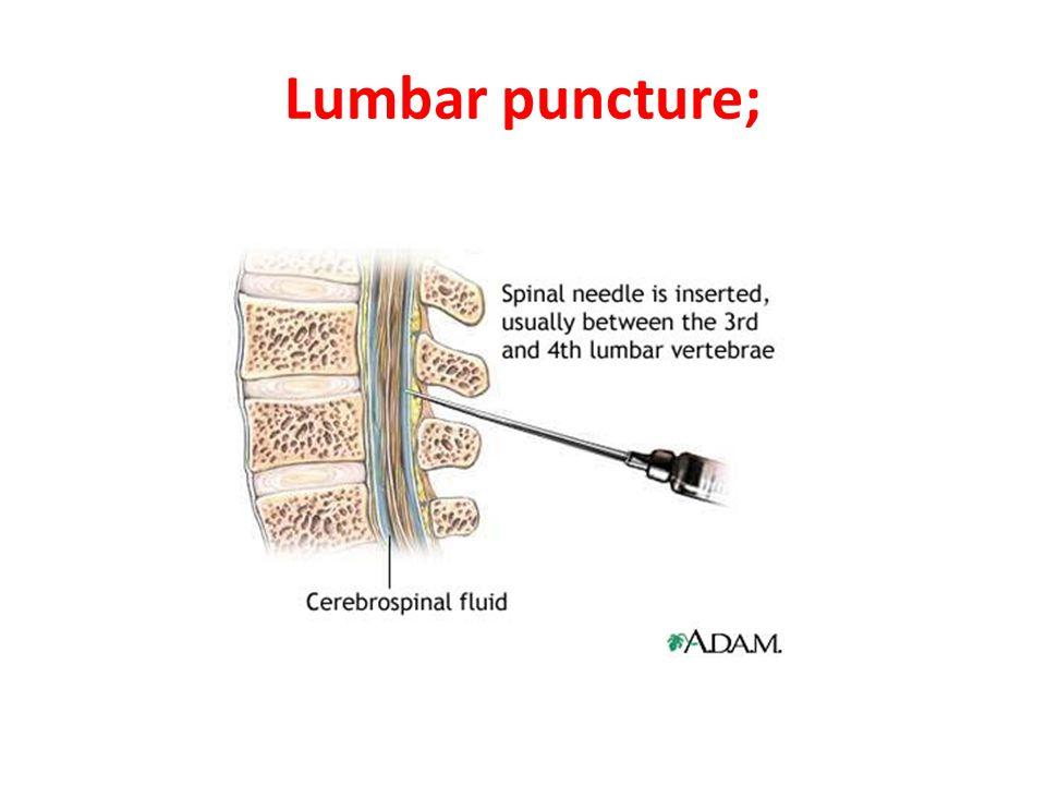 Lumbar puncture;
