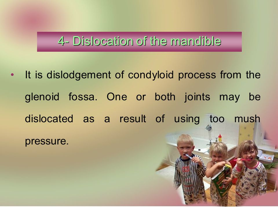 4- Dislocation of the mandible