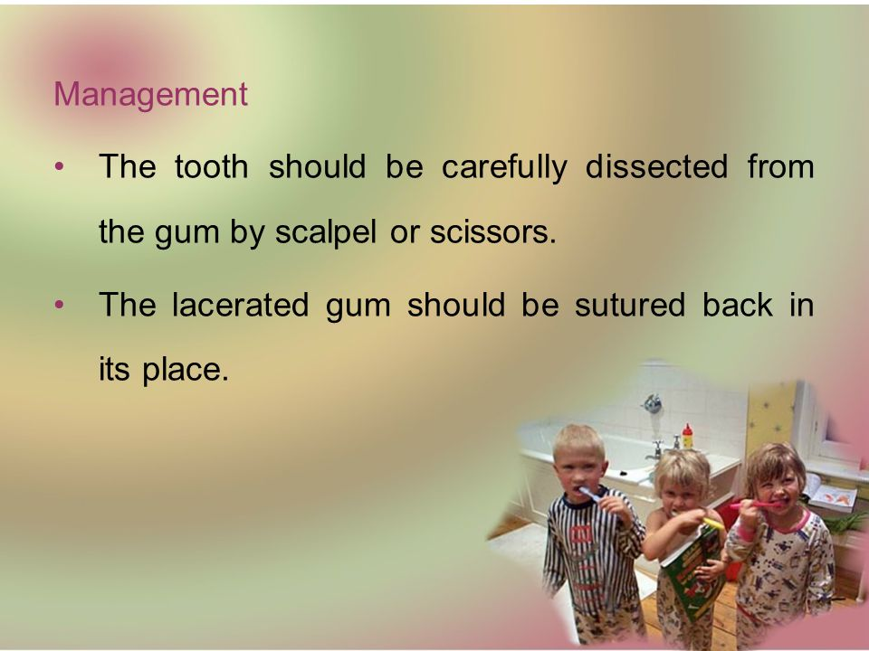 Management The tooth should be carefully dissected from the gum by scalpel or scissors.