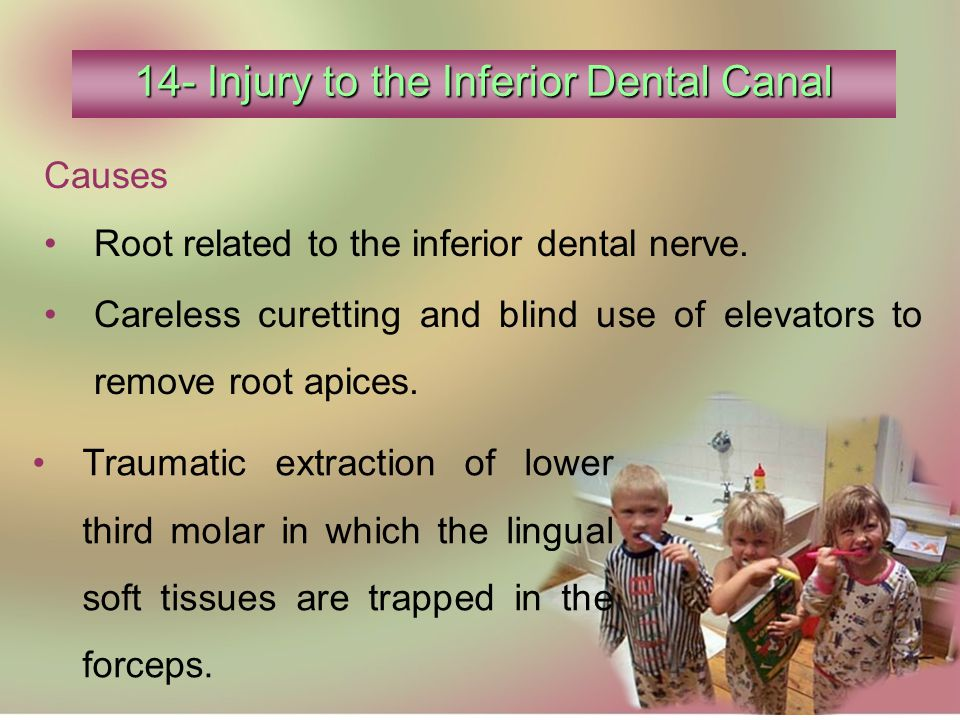 14- Injury to the Inferior Dental Canal