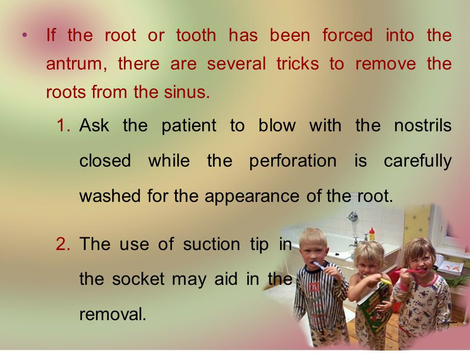 If the root or tooth has been forced into the antrum, there are several tricks to remove the roots from the sinus.