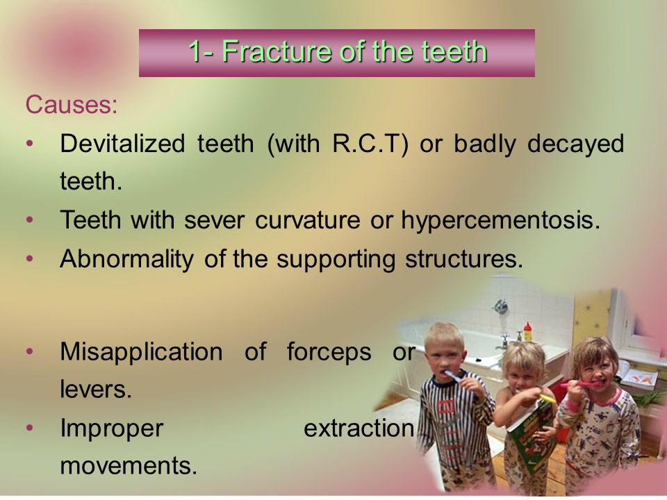 1- Fracture of the teeth Causes: