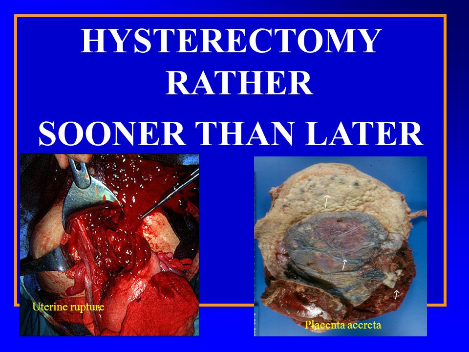 HYSTERECTOMY RATHER SOONER THAN LATER