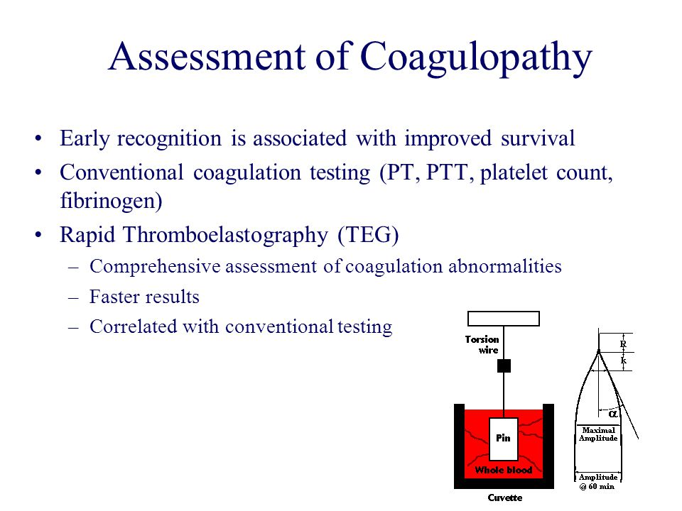 Assessment of Coagulopathy