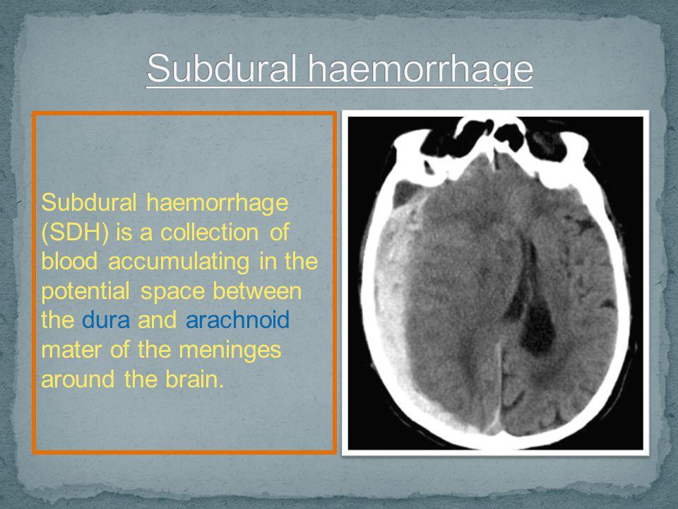 Subdural haemorrhage