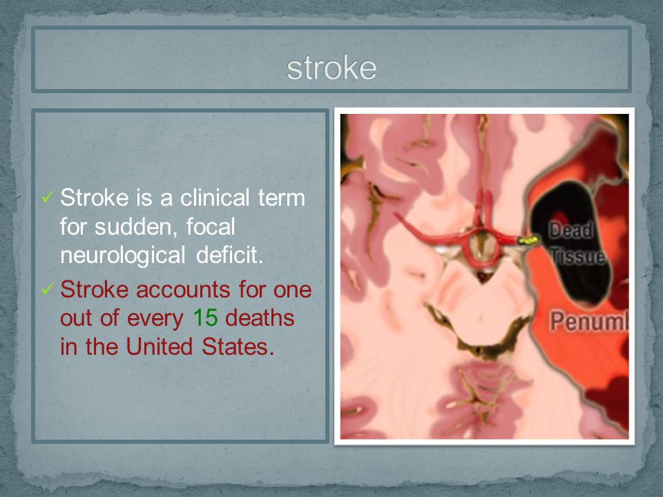 stroke Stroke is a clinical term for sudden, focal neurological deficit.