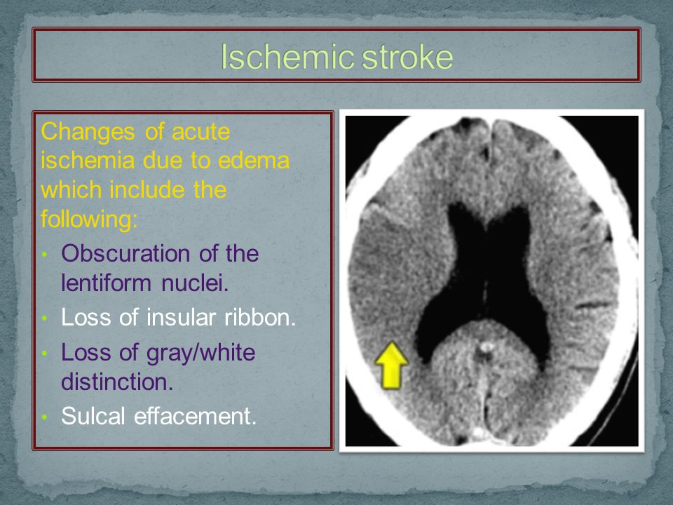 Ischemic stroke Changes of acute ischemia due to edema which include the following: Obscuration of the lentiform nuclei.