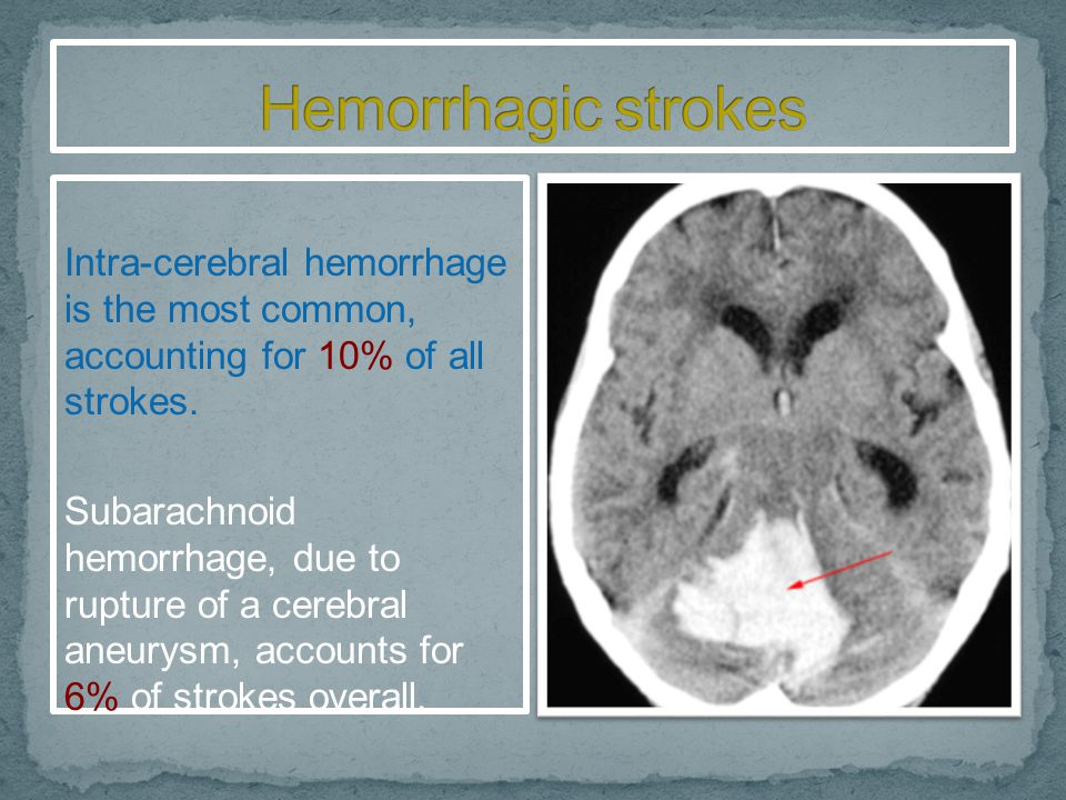Hemorrhagic strokes Intra-cerebral hemorrhage is the most common, accounting for 10% of all strokes.