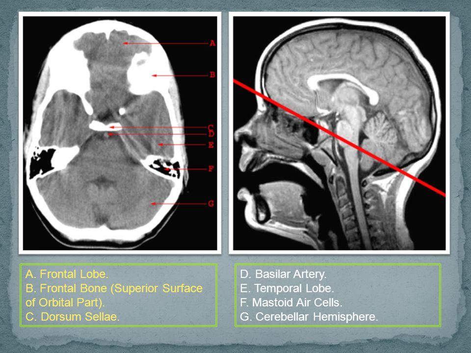 A. Frontal Lobe. B. Frontal Bone (Superior Surface of Orbital Part). C. Dorsum Sellae. D. Basilar Artery.