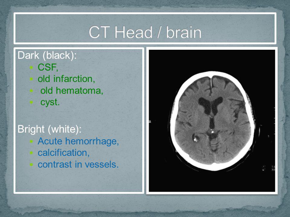 CT Head / brain Dark (black): Bright (white): CSF, old infarction,