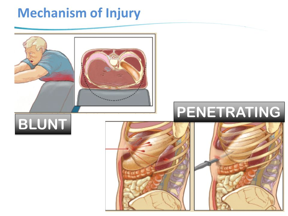 Mechanism of Injury PENETRATING BLUNT