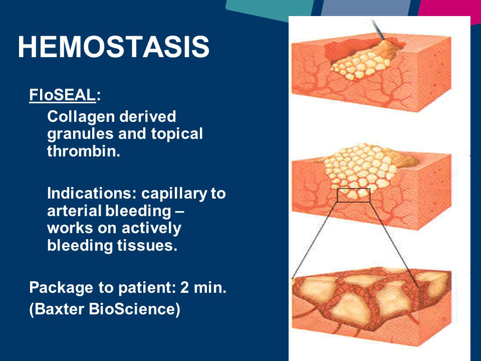 HEMOSTASIS FloSEAL: Collagen derived granules and topical thrombin.